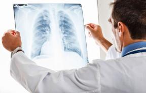 CBD raka płuc