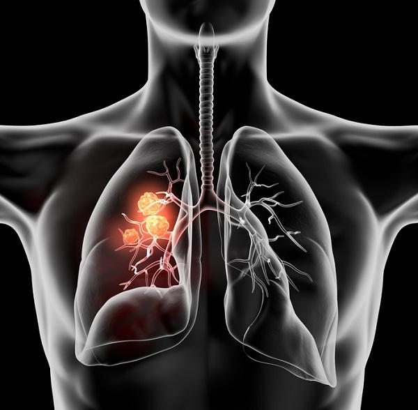 olej RSO raka płuc