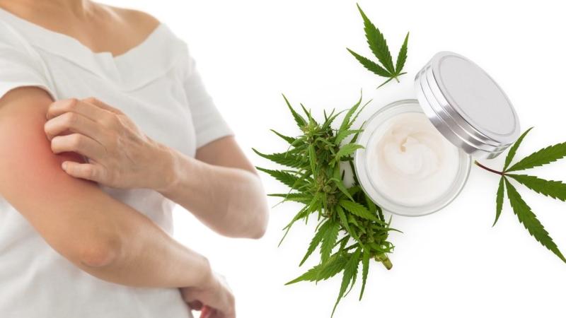 Medyczna marihuana łuszczyca