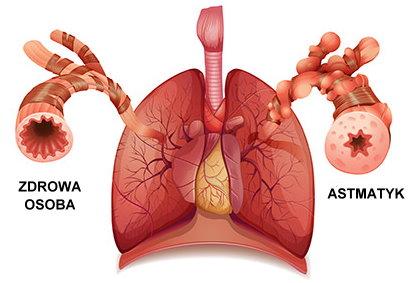 CBD THC w leczeniu astmy